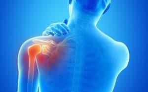 运动康复:肩周炎